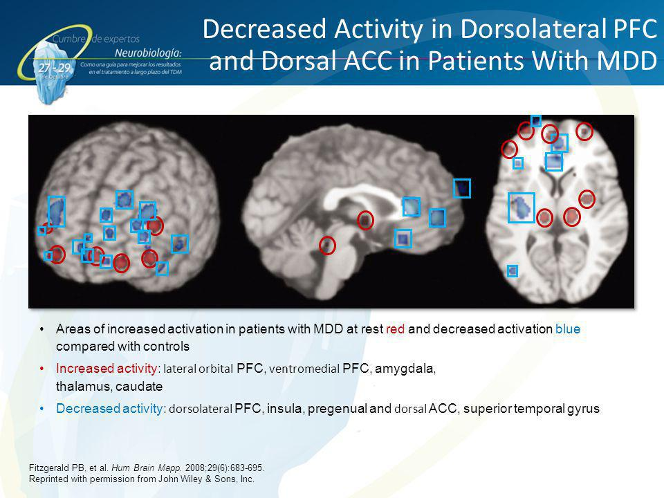 Decreased Activity in Dorsolateral PFC and Dorsal ACC in Patients With MDD Areas of increased activation in patients with MDD at rest red and decrease