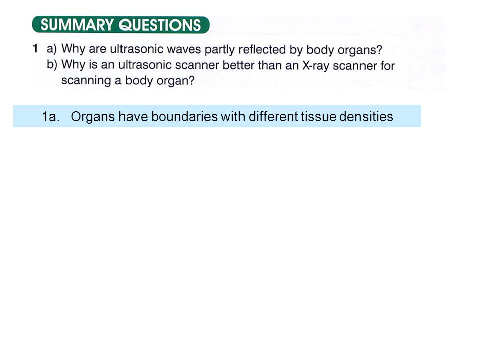 1a. Organs have boundaries with different tissue densities