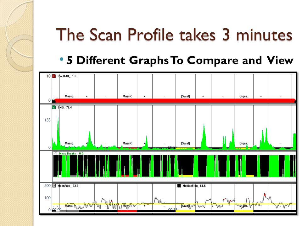 The Scan Profile takes 3 minutes 5 Different Graphs To Compare and View