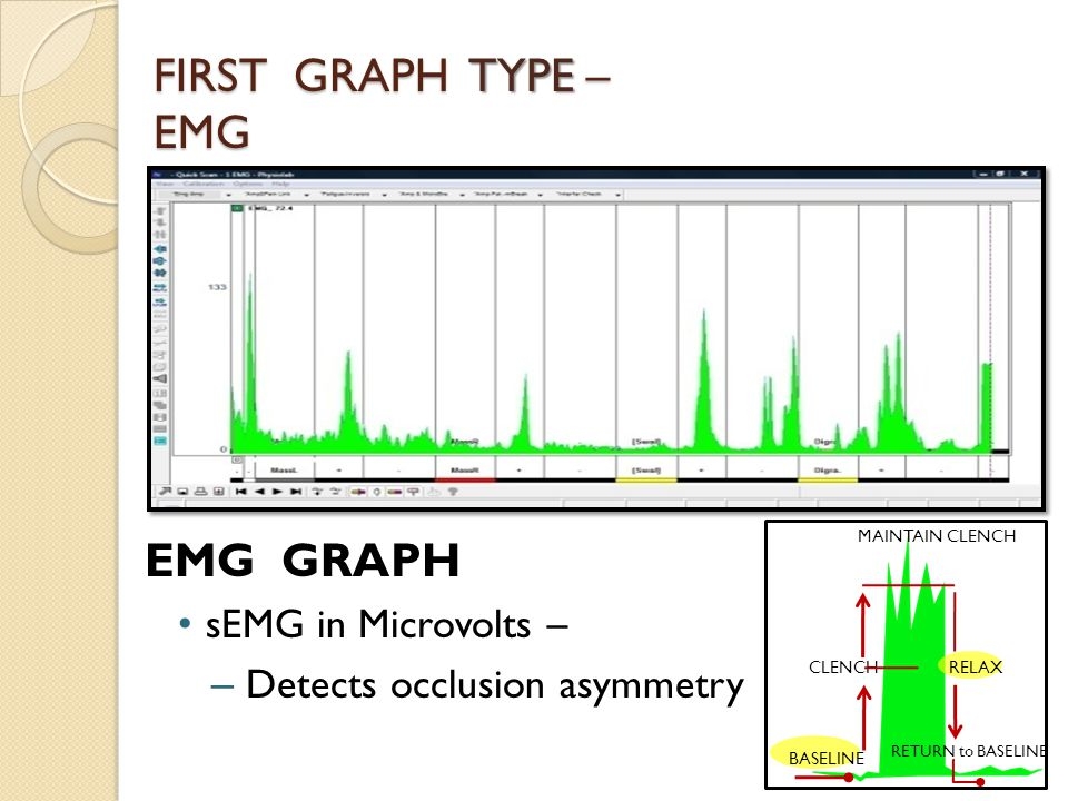 FIRST GRAPH TYPE – EMG EMG GRAPH sEMG in Microvolts – – Detects occlusion asymmetry RETURN to BASELINE BASELINE CLENCH MAINTAIN CLENCH RELAX
