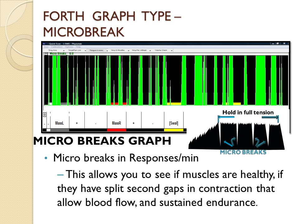 FORTH GRAPH TYPE – MICROBREAK MICRO BREAKS GRAPH Micro breaks in Responses/min – This allows you to see if muscles are healthy, if they have split second gaps in contraction that allow blood flow, and sustained endurance.