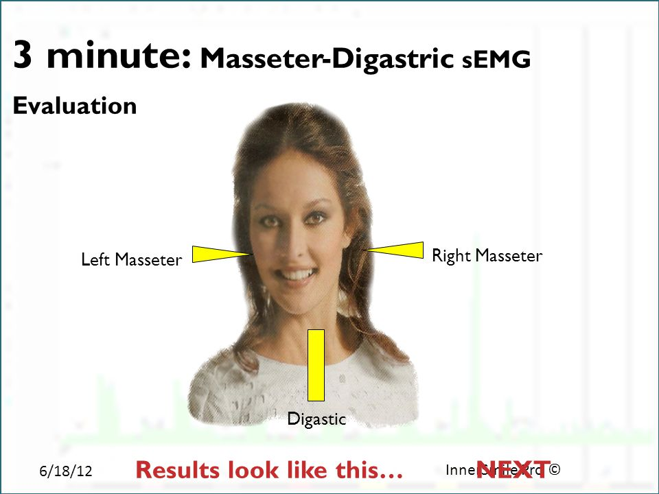 6/18/12 InnerSmile Pro © 3 minute: Masseter-Digastric sEMG Evaluation Left Masseter Right Masseter Digastic Results look like this… NEXT
