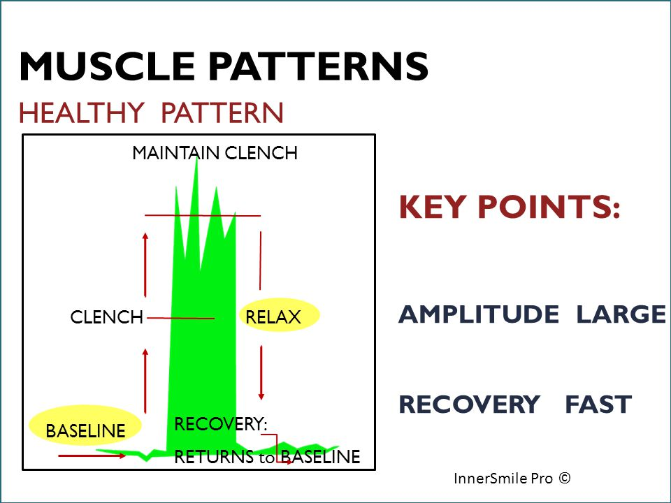 6/18/12 InnerSmile Pro © HEALTHY PATTERN RECOVERY: RETURNS to BASELINE BASELINE CLENCH MAINTAIN CLENCH RELAX KEY POINTS: AMPLITUDE LARGE RECOVERY FAST MUSCLE PATTERNS InnerSmile Pro ©