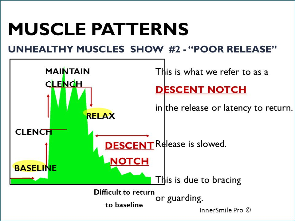 6/18/12 InnerSmile Pro © BASELINE CLENCH MAINTAIN CLENCH RELAX DESCENT NOTCH This is what we refer to as a DESCENT NOTCH in the release or latency to return.