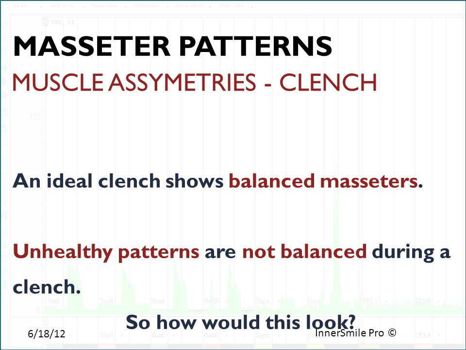 6/18/12 InnerSmile Pro © MUSCLE ASSYMETRIES - CLENCH An ideal clench shows balanced masseters.