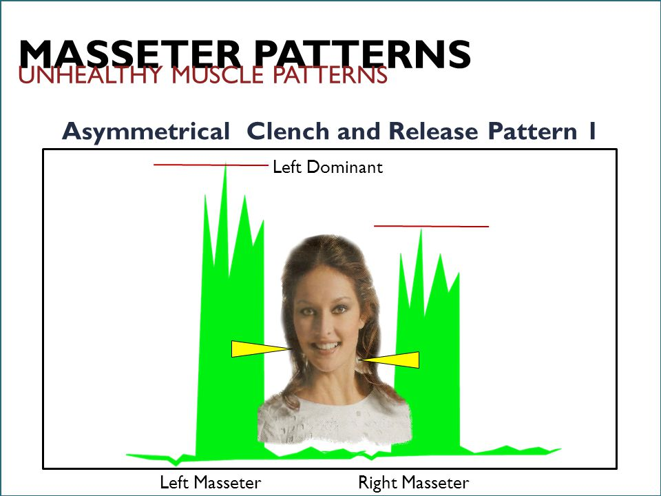 6/18/12 InnerSmile Pro © MASSETER PATTERNS Asymmetrical Clench and Release Pattern 1 Left MasseterRight Masseter Left Dominant UNHEALTHY MUSCLE PATTERNS