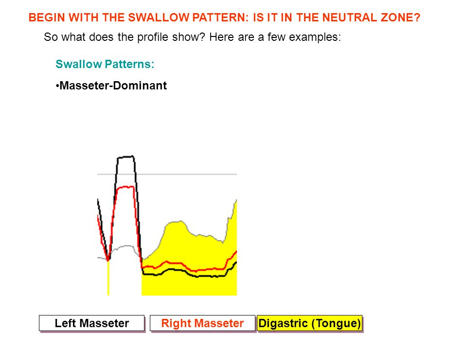 So what does the profile show? Here are a few examples: Swallow Patterns: Masseter-Dominant BEGIN WITH THE SWALLOW PATTERN: IS IT IN THE NEUTRAL ZONE?