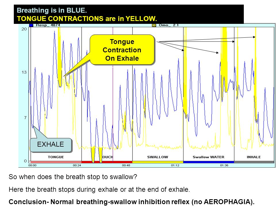 Breathing is in BLUE. TONGUE CONTRACTIONS are in YELLOW. So when does the breath stop to swallow? Here the breath stops during exhale or at the end of
