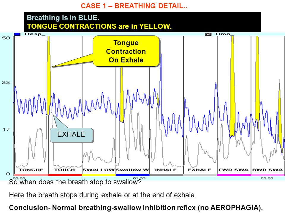 CASE 1 – BREATHING DETAIL.. Breathing is in BLUE. TONGUE CONTRACTIONS are in YELLOW. So when does the breath stop to swallow? Here the breath stops du