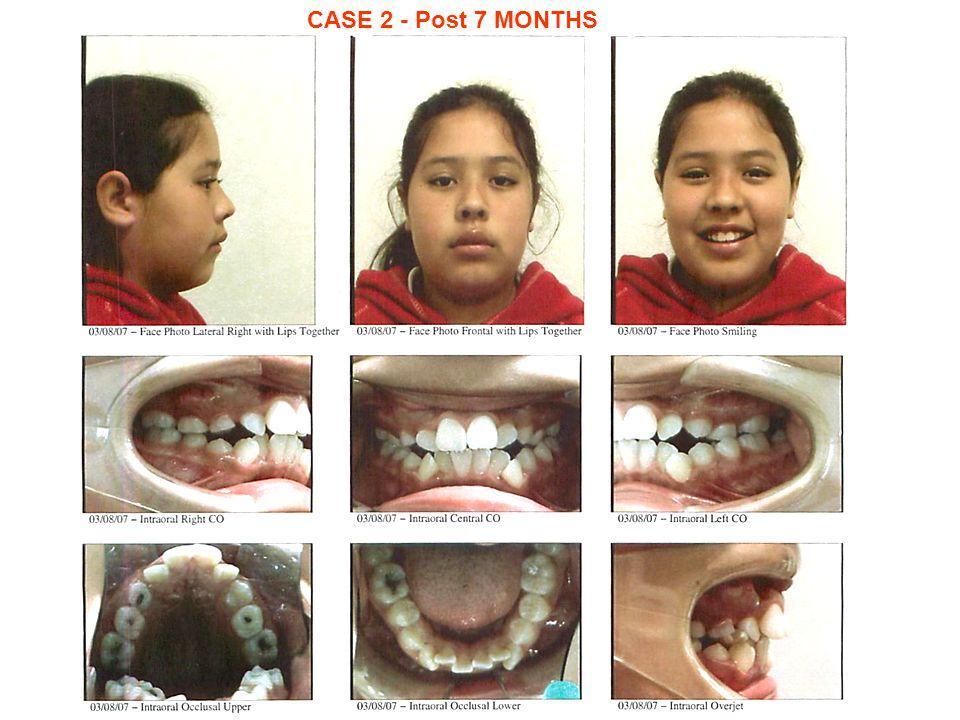 CASE 2 - Post 7 MONTHS