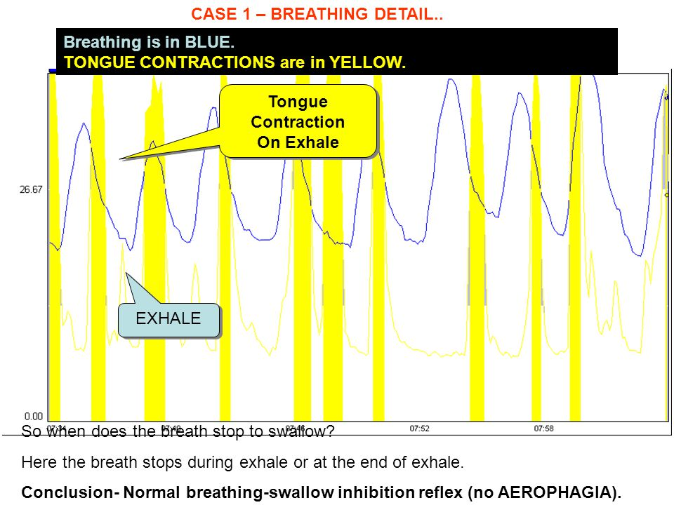 CASE 1 – BREATHING DETAIL..Breathing is in BLUE. TONGUE CONTRACTIONS are in YELLOW.