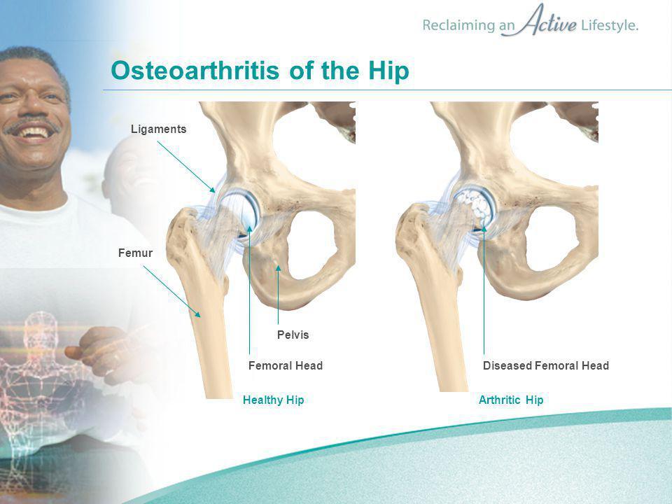 Osteoarthritis of the Hip Healthy Hip Arthritic Hip Ligaments Femur Femoral Head Pelvis Diseased Femoral Head