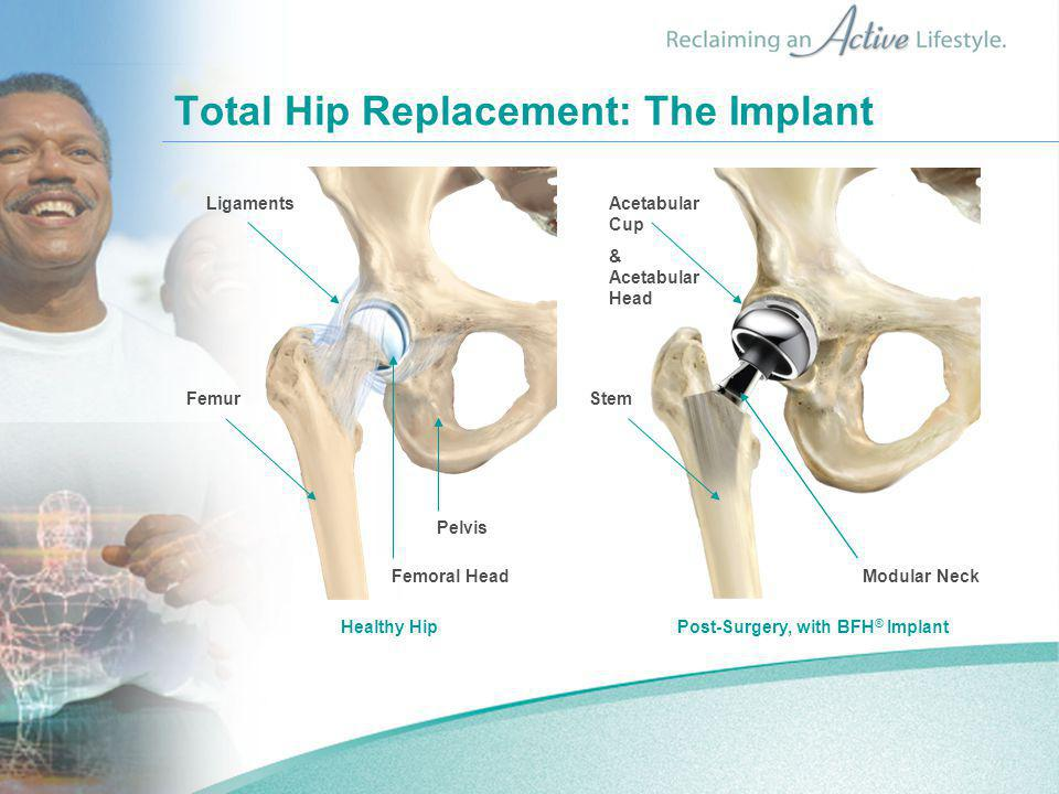 Total Hip Replacement: The Implant Healthy HipPost-Surgery, with BFH ® Implant Ligaments Femur Femoral Head Pelvis Acetabular Cup & Acetabular Head Stem Modular Neck