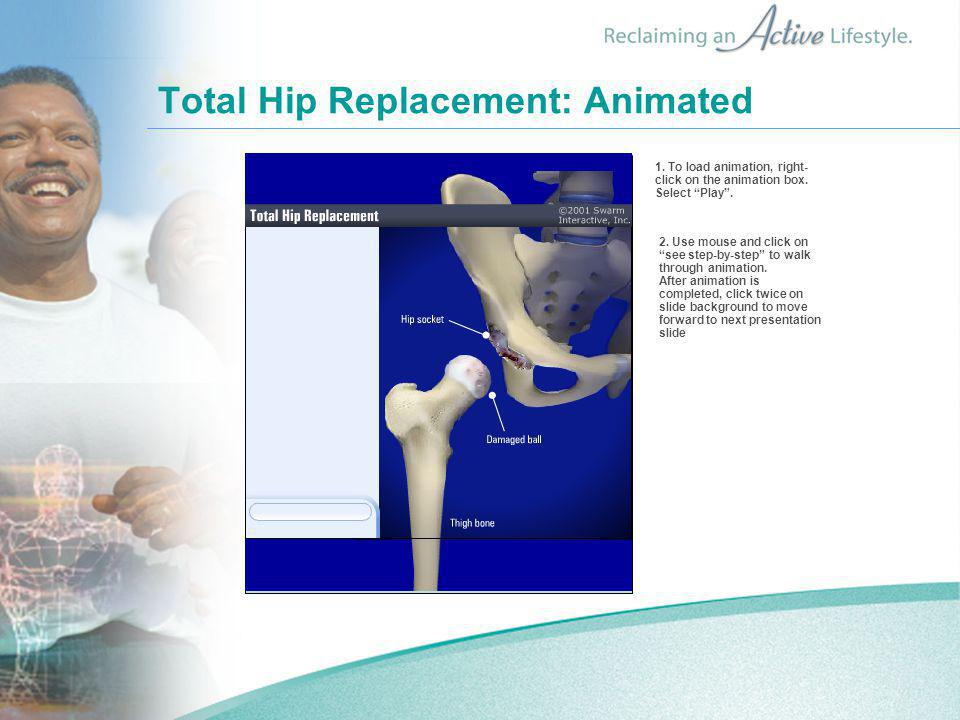 """Total Hip Replacement: Animated 2. Use mouse and click on """"see step-by-step"""" to walk through animation. After animation is completed, click twice on s"""