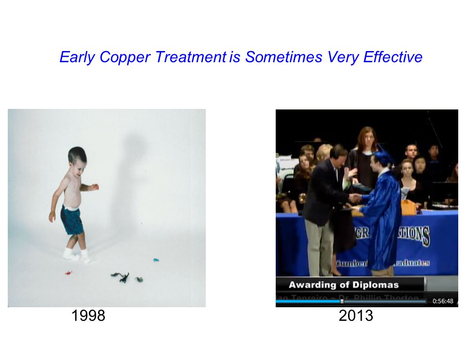 Early Copper Treatment is Sometimes Very Effective 19982013