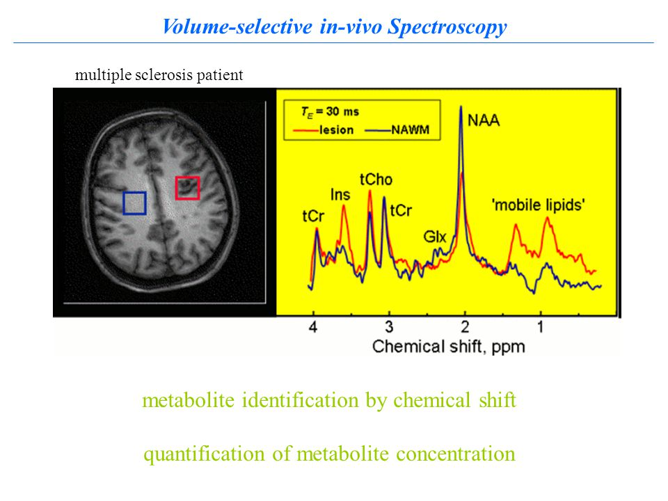 Volume-selective in-vivo Spectroscopy metabolite identification by chemical shift quantification of metabolite concentration multiple sclerosis patient