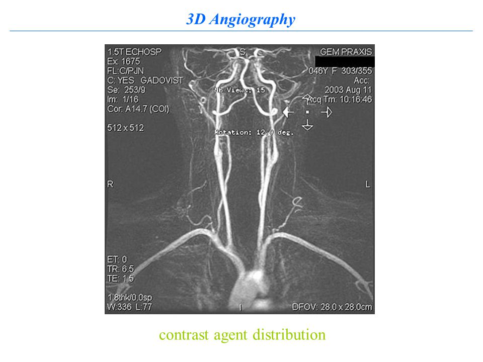 3D Angiography contrast agent distribution