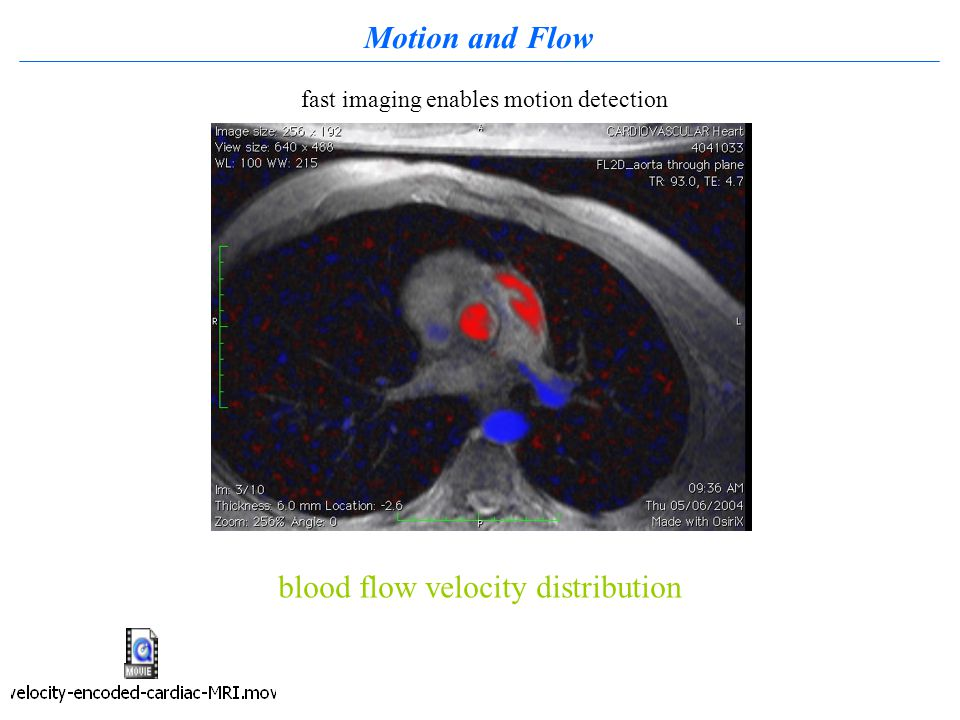 Motion and Flow blood flow velocity distribution fast imaging enables motion detection