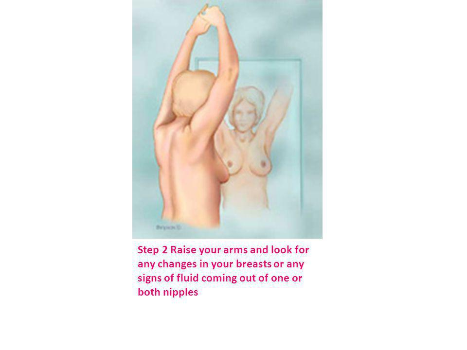 Step 2 Raise your arms and look for any changes in your breasts or any signs of fluid coming out of one or both nipples