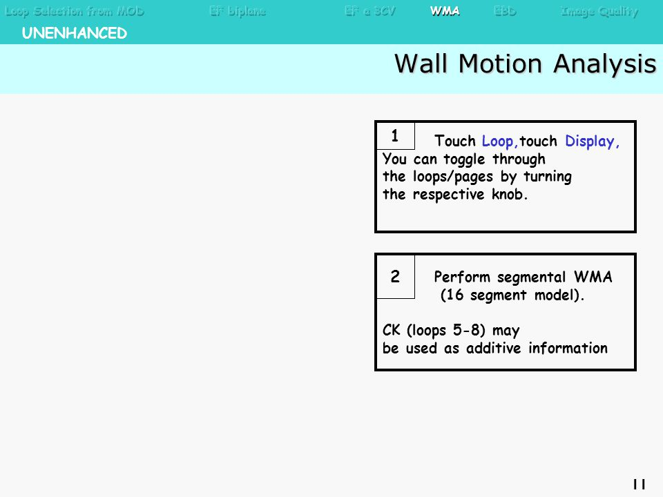 Wall Motion Analysis Wall Motion Analysis Perform segmental WMA (16 segment model).