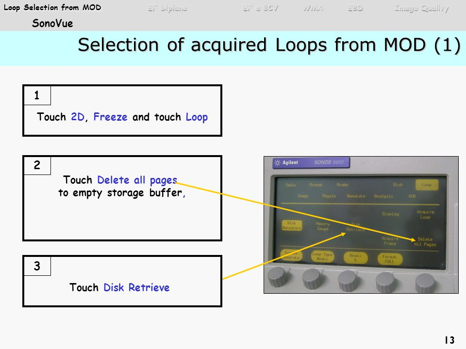 Selection of acquired Loops from MOD (1) Selection of acquired Loops from MOD (1) Touch 2D, Freeze and touch Loop 1 Touch Delete all pages to empty storage buffer, 2 Touch Disk Retrieve 3 13 Loop Selection from MOD Loop Selection from MOD SonoVue