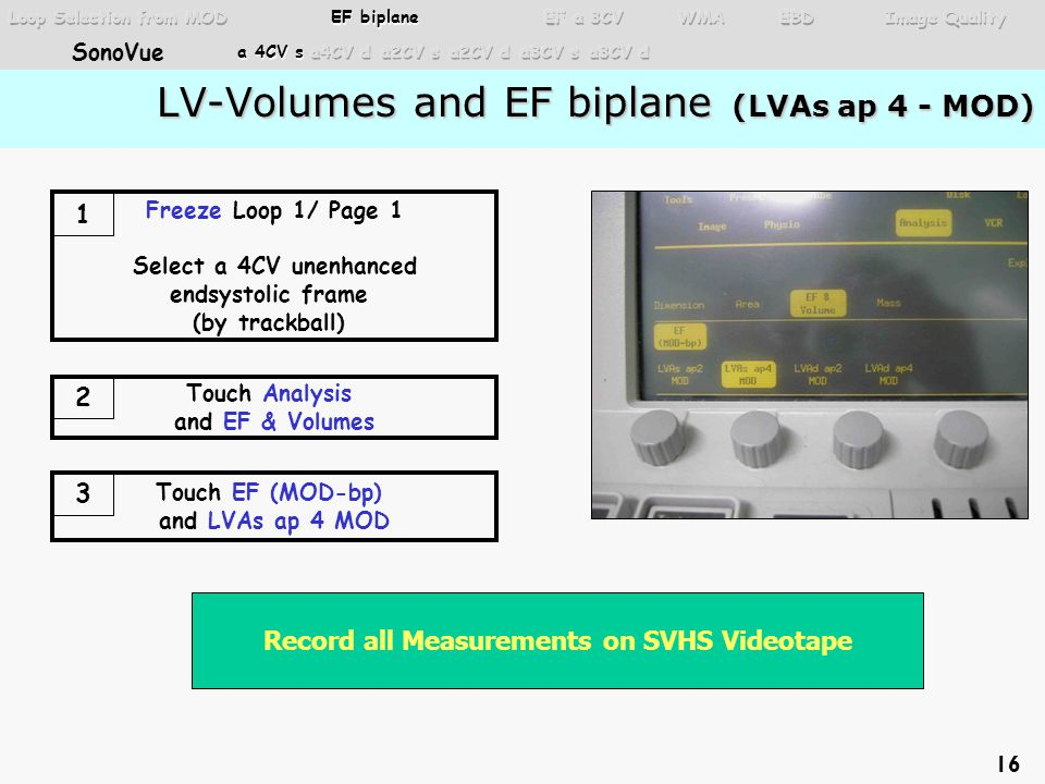 LV-Volumes and EF biplane (LVAs ap 4 - MOD) LV-Volumes and EF biplane (LVAs ap 4 - MOD) Freeze Loop 1/ Page 1 Select a 4CV unenhanced endsystolic frame (by trackball) 1 Touch Analysis and EF & Volumes 2 Touch EF (MOD-bp) and LVAs ap 4 MOD 3 16 EF biplane EF biplane a 4CV s a 4CV s SonoVue Record all Measurements on SVHS Videotape