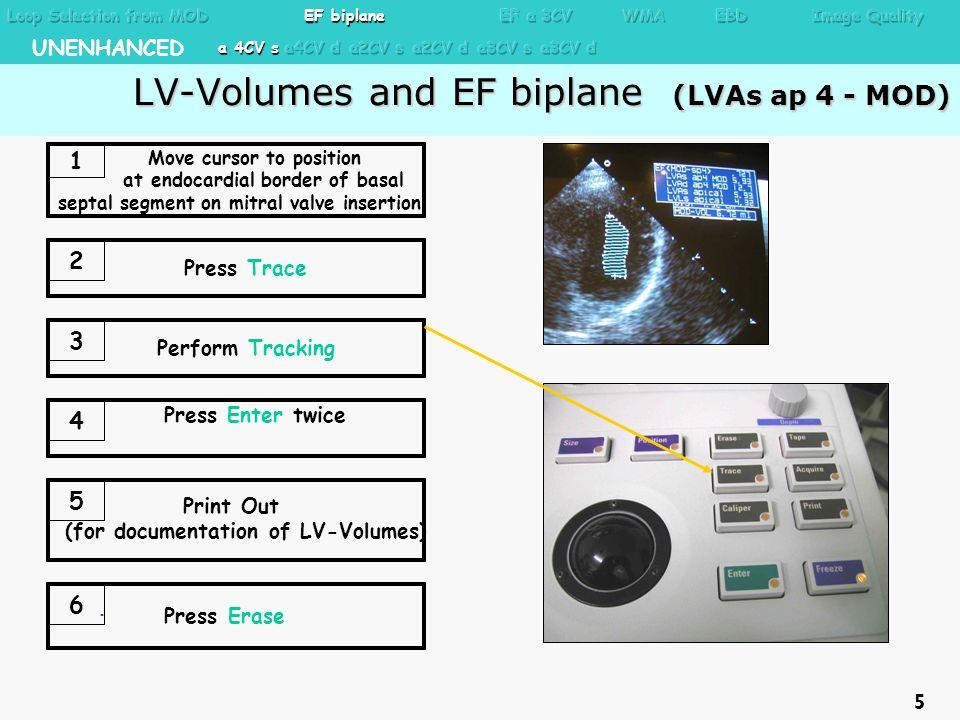 LV-Volumes and EF biplane (LVAs ap 4 - MOD) LV-Volumes and EF biplane (LVAs ap 4 - MOD). Move cursor to position at endocardial border of basal septal
