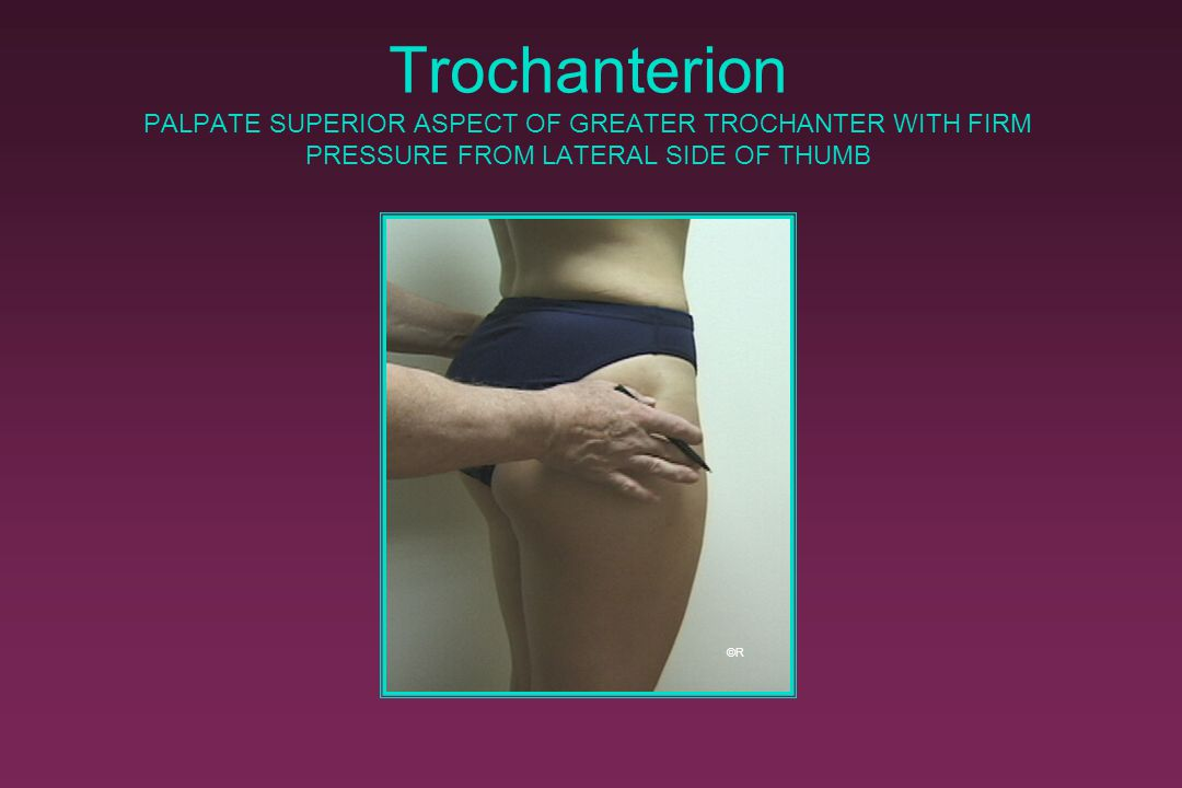 Trochanterion PALPATE SUPERIOR ASPECT OF GREATER TROCHANTER WITH FIRM PRESSURE FROM LATERAL SIDE OF THUMB ©R