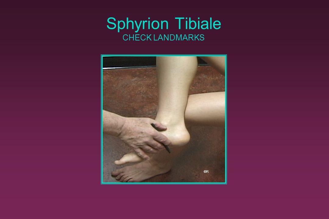 Sphyrion Tibiale CHECK LANDMARKS ©R