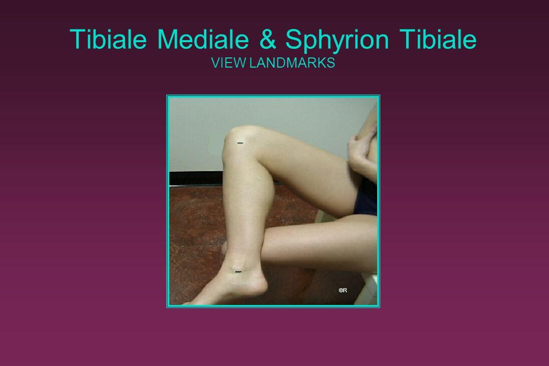Tibiale Mediale & Sphyrion Tibiale VIEW LANDMARKS ©R