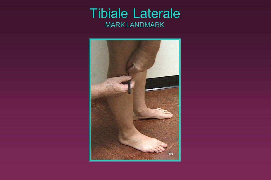 Tibiale Laterale MARK LANDMARK ©R