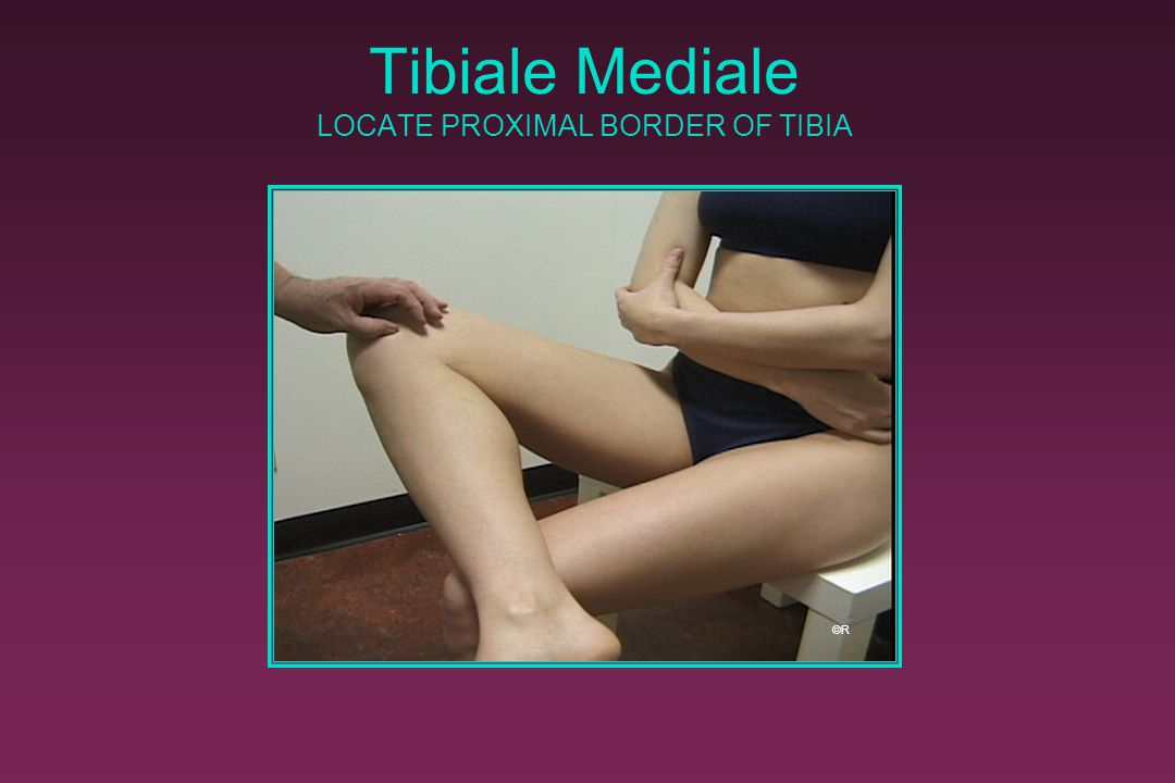Tibiale Mediale LOCATE PROXIMAL BORDER OF TIBIA ©R