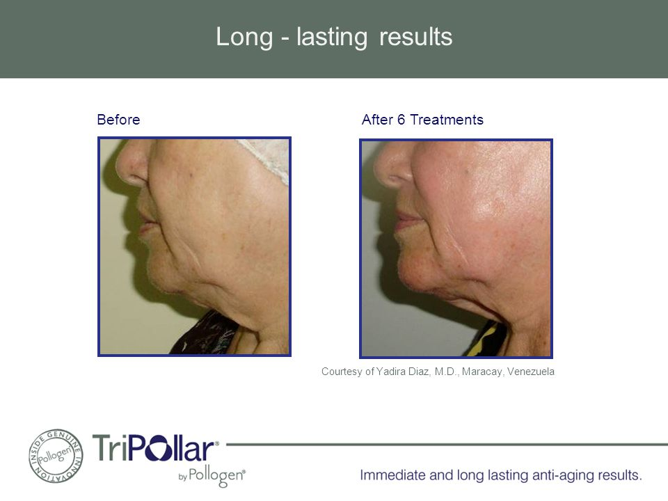 Long - lasting results Courtesy of Yadira Diaz, M.D., Maracay, Venezuela Before After 6 Treatments