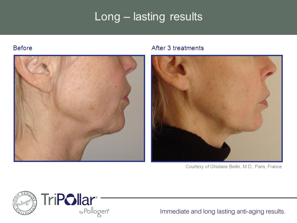 Long – lasting results After 3 treatmentsBefore Courtesy of Ghislane Beilin, M.D., Paris, France