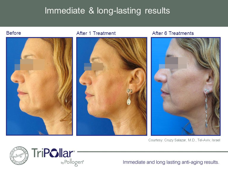 Before After 6 TreatmentsAfter 1 Treatment Immediate & long-lasting results Courtesy: Cruzy Salazar, M.D., Tel-Aviv, Israel