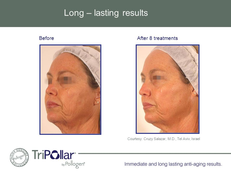 Long – lasting results After 8 treatmentsBefore Courtesy: Cruzy Salazar, M.D., Tel Aviv, Israel