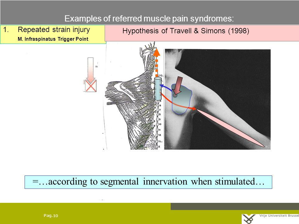 Pag. 10 1.Repeated strain injury M.