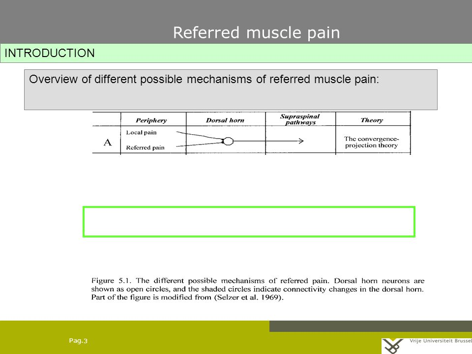 Pag. 3 Overview of different possible mechanisms of referred muscle pain: INTRODUCTION Referred muscle pain