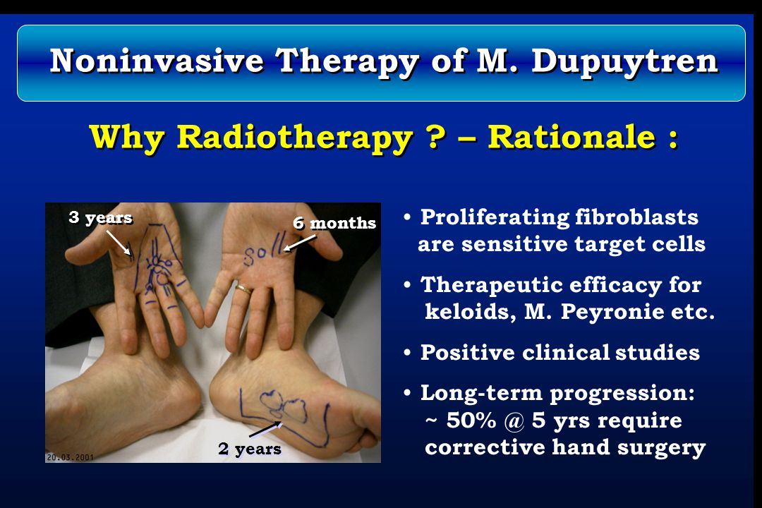 Why Radiotherapy ? – Rationale : Proliferating fibroblasts are sensitive target cells Therapeutic efficacy for keloids, M. Peyronie etc. Positive clin