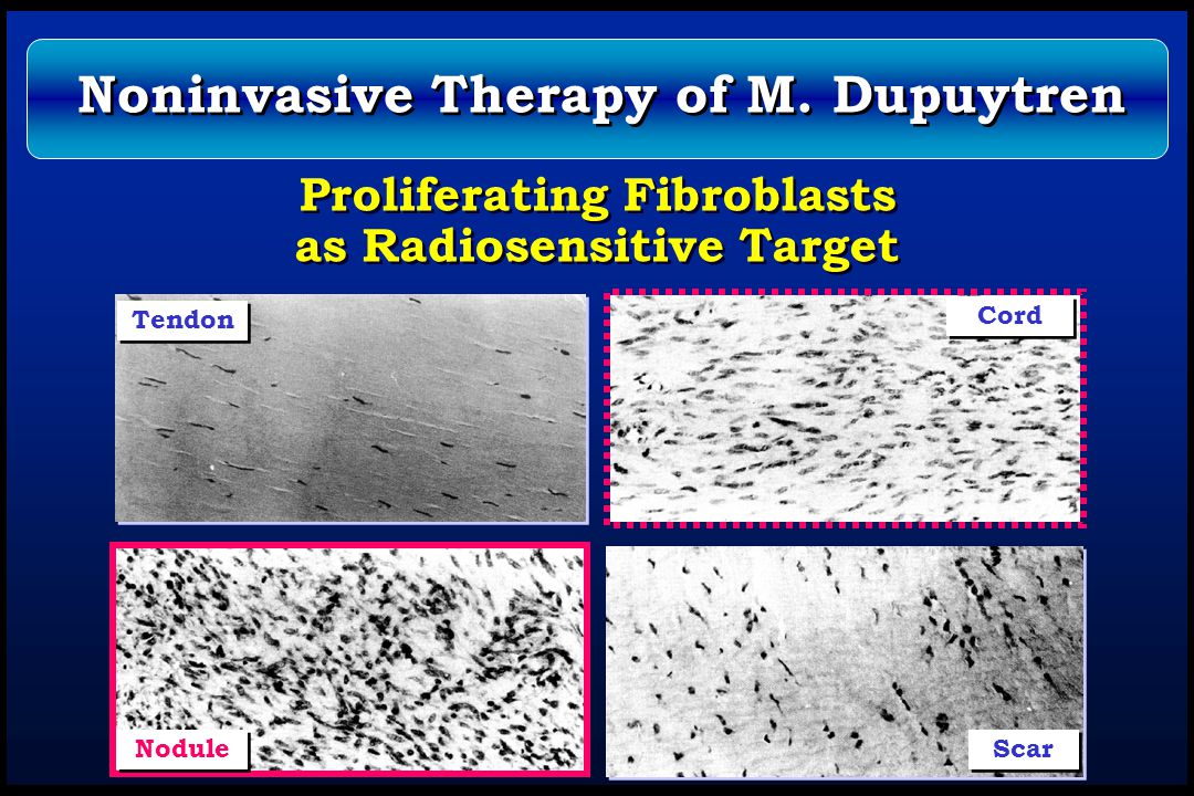 Proliferating Fibroblasts as Radiosensitive Target Tendon Cord Nodule Scar Noninvasive Therapy of M. Dupuytren