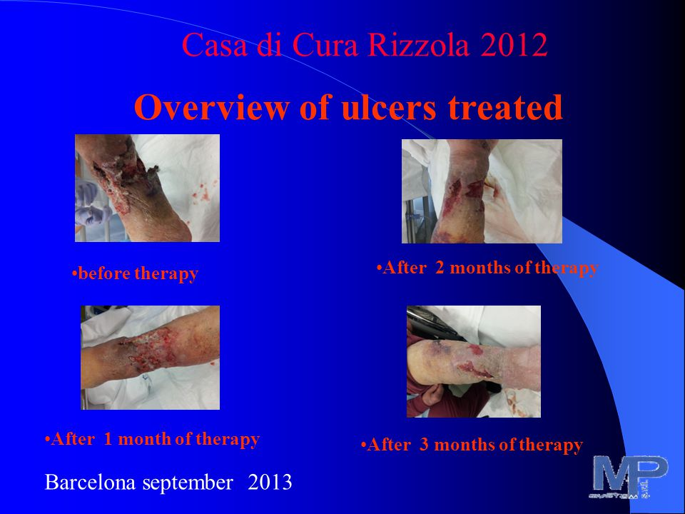 Overview of ulcers treated Casa di Cura Rizzola 2012 Barcelona september 2013 before therapy After 1 month of therapy After 2 months of therapy After 3 months of therapy