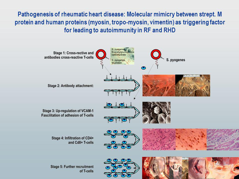 Pathogenesis of rheumatic heart disease: Molecular mimicry between strept.