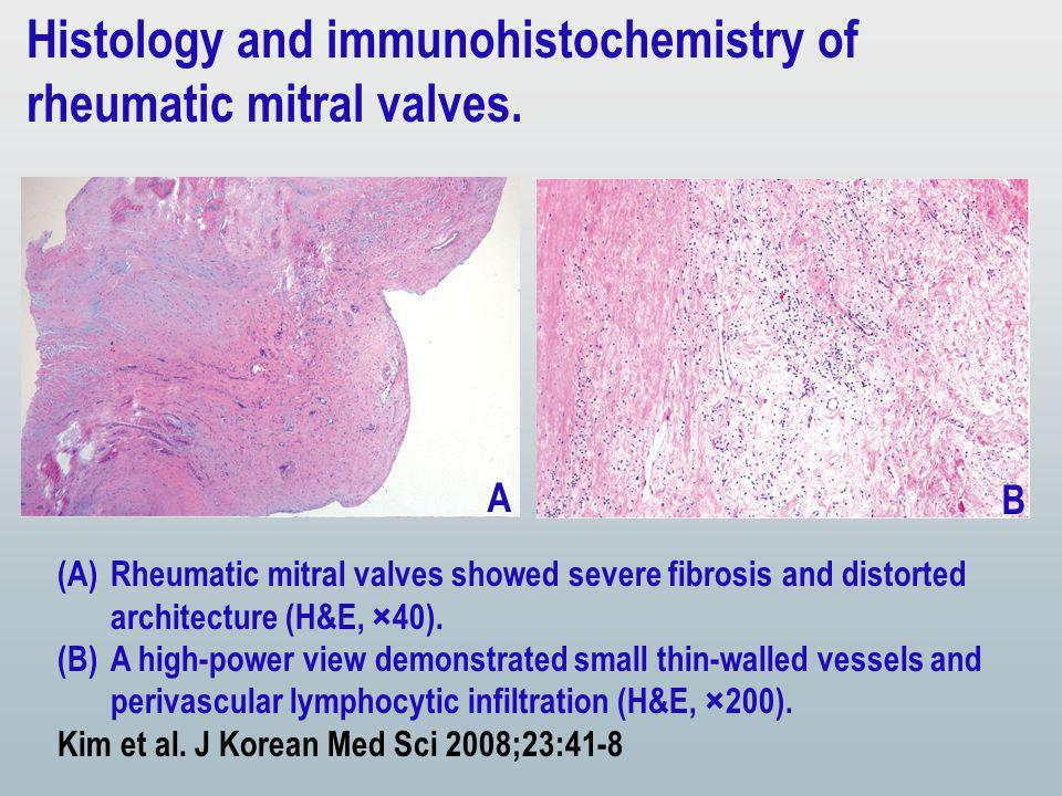 (A)Rheumatic mitral valves showed severe fibrosis and distorted architecture (H&E, ×40).