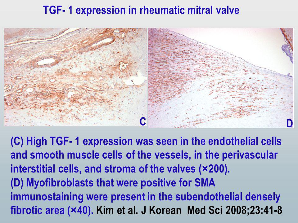 (C) High TGF- 1 expression was seen in the endothelial cells and smooth muscle cells of the vessels, in the perivascular interstitial cells, and stroma of the valves (×200).