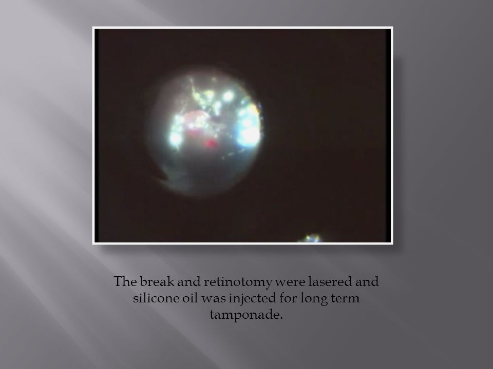 The break and retinotomy were lasered and silicone oil was injected for long term tamponade.