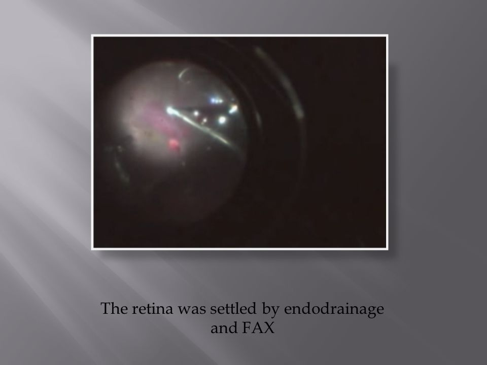 The retina was settled by endodrainage and FAX