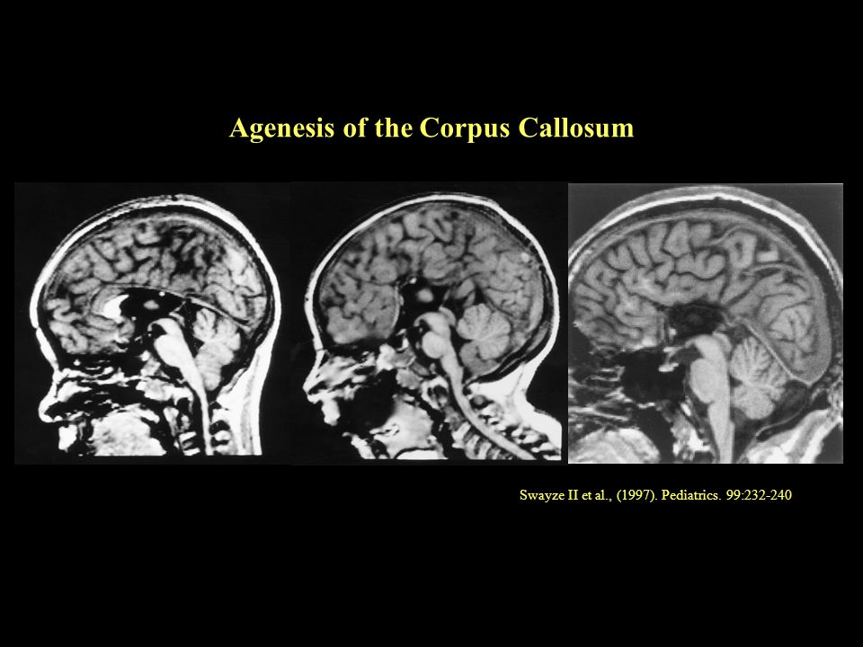 Swayze II et al., (1997). Pediatrics. 99:232-240 Agenesis of the Corpus Callosum