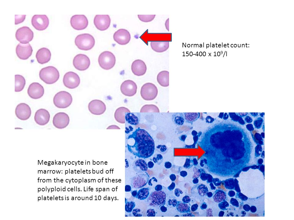 Normal platelet count: 150-400 x 10 9 /l Megakaryocyte in bone marrow: platelets bud off from the cytoplasm of these polyploid cells. Life span of pla