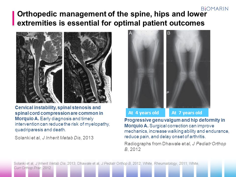 AssessmentAt diagnosisFrequency Neurological examYes6 months Plain radiography cervical spine (AP, lateral neutral and flexion-extension) Yes2-3 years Plain radiography spine (AP, lateral thoracolumbar) Yes 2-3 years if evidence of kyphosis or scoliosis MRI neutral position, whole spineYes1 year Flexion-extension of cervical spine by MRI Yes1-3 years CT neutral region of interestPreoperative planning Solanki et al, J Inherit Metab Dis, 2013 Regular assessments of the spine are recommended for improved patient outcomes