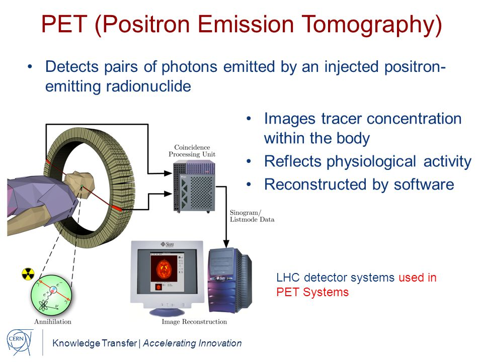 Knowledge Transfer | Accelerating Innovation PET (Positron Emission Tomography) Detects pairs of photons emitted by an injected positron- emitting radionuclide LHC detector systems used in PET Systems Images tracer concentration within the body Reflects physiological activity Reconstructed by software